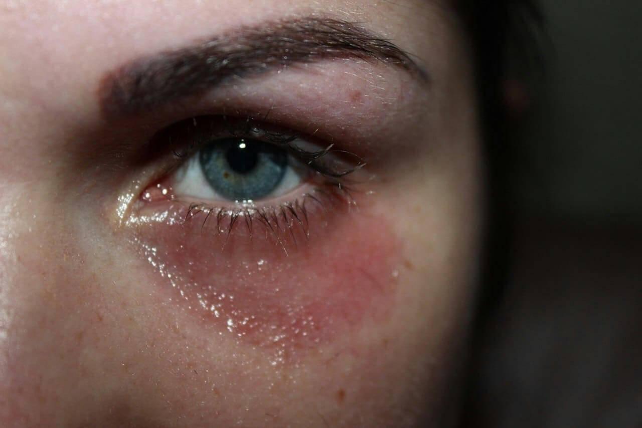 """Красные пятна на веках: причины и лечение - """"здоровое око"""""""
