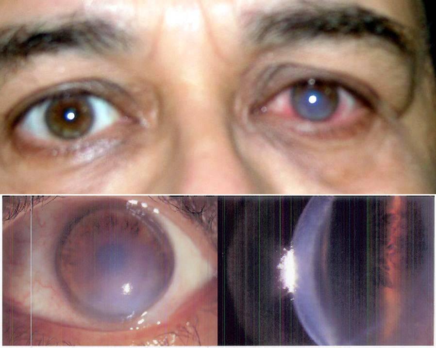 Пересадка роговицы глаза (кератопластика) - последствия, как проходит