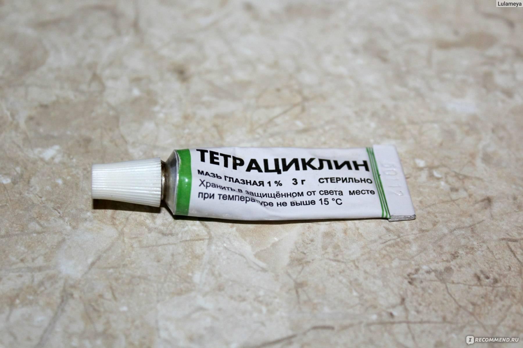 Обзор лучших антибактериальных и противовоспалительных глазных капель