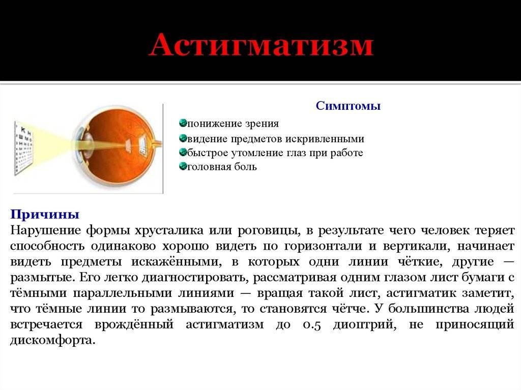 Астигматизм - причины, виды, симптомы и признаки. методы диагностики и лечения патологии. осложнения астигматизма