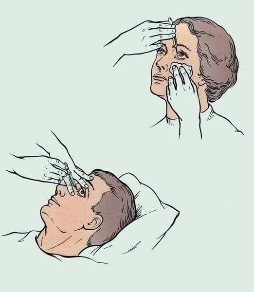 Избавляемся от боли в глазах после сварки – быстро и просто