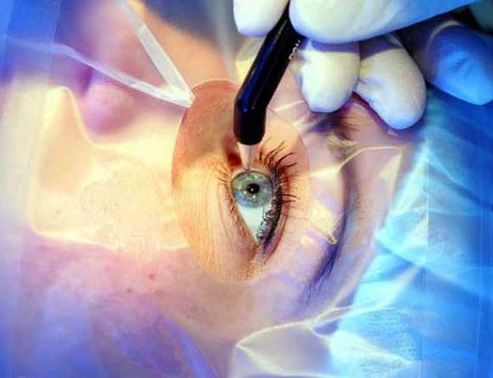 Прямое сравнение методов лазерной коррекции миопии или за что вы платите при выборе relex smile / блог компании клиника офтальмологии доктора шиловой / хабр