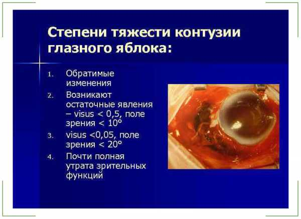 Контузия глаза - что это такое: 1,2 и 3 степени тяжести травмы, код мкб-10, последствия для глазного яблока, лечение и фото