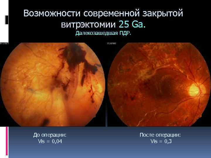 Витрэктомия — операция по удалению стекловидного тела в цэлт!