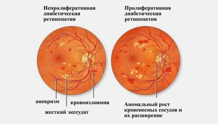 Ретинопатия — разновидности болезни, признаки, диагностика, методы терапии и профилактики