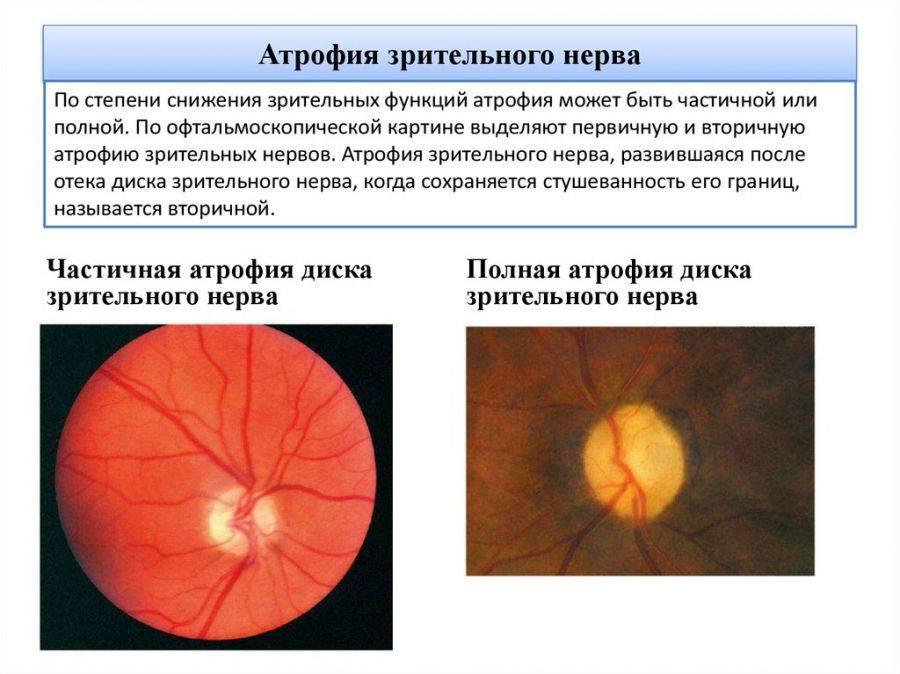 Лечение синдрома лебера