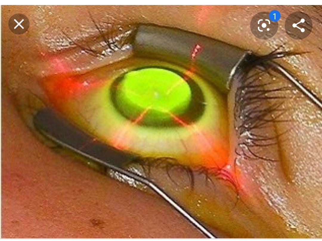 Кросслинкинг роговицы - эффект после операции, последствия, цена, видео, отзывы