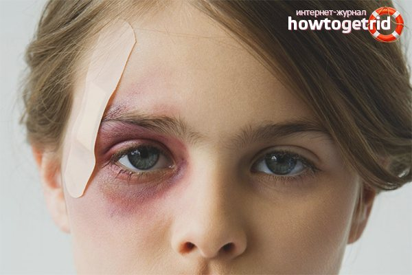 Лопнул сосуд под глазом на веке: причины, симптомы, методы лечения oculistic.ru лопнул сосуд под глазом на веке: причины, симптомы, методы лечения
