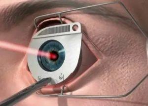 Склеропластика глаз у детей: отзывы родителей, цена
