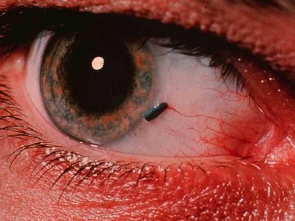 Ощущение инородного тела в глазу – болезни, вызывающие подобный симптом, методы лечения