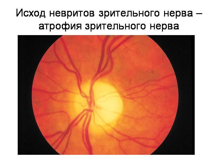 Неврит глазного нерва:  причины, симптомы, лечение и прогноз