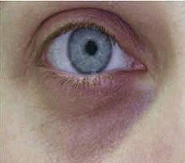Темные круги под глазами: причины у женщин и мужчин, как избавиться