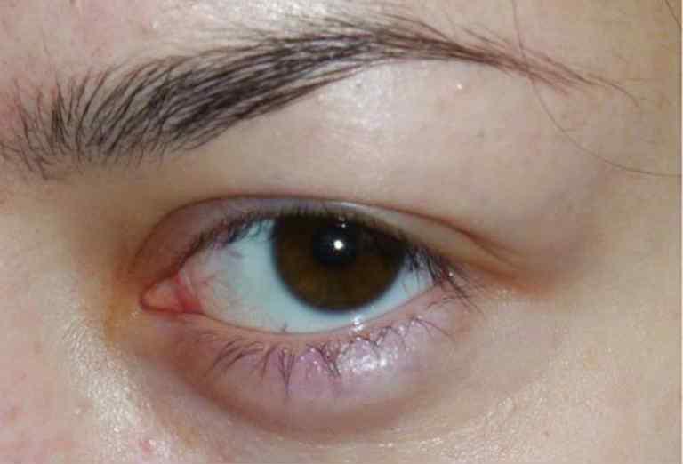Как быстро избавиться от ячменя на глазу: как убрать