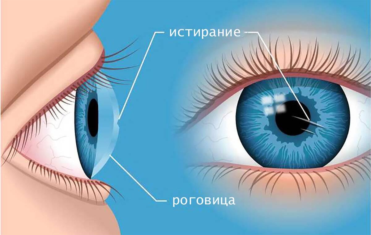 На роговице глаза царапина - что делать и как лечить