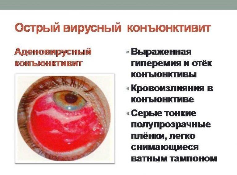 Как протекает конъюнктивит: инкубационный период, симптомы, профилактика