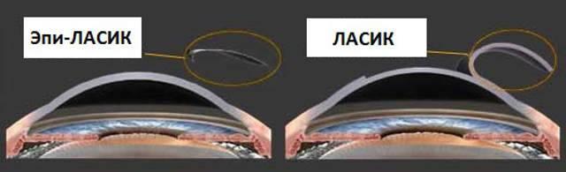 Лазерная коррекция зрения - фрк и ласик