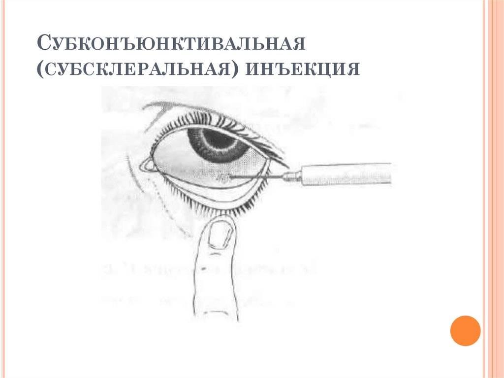 Субконъюнктивальное введение медицинских препаратов в лечении глазных заболеваний