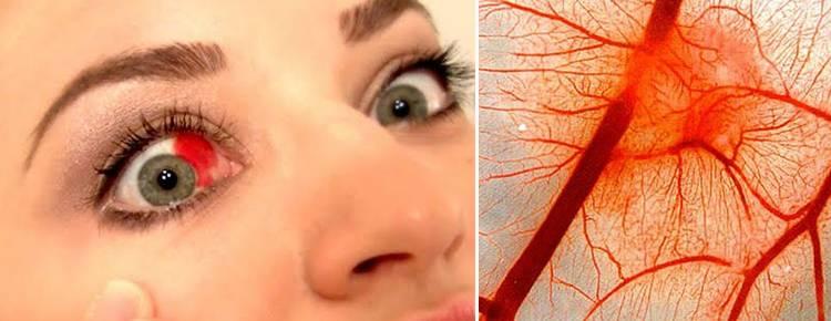 Кровоизлияние в глаз: как долго проходит, капли при кровоизлиянии