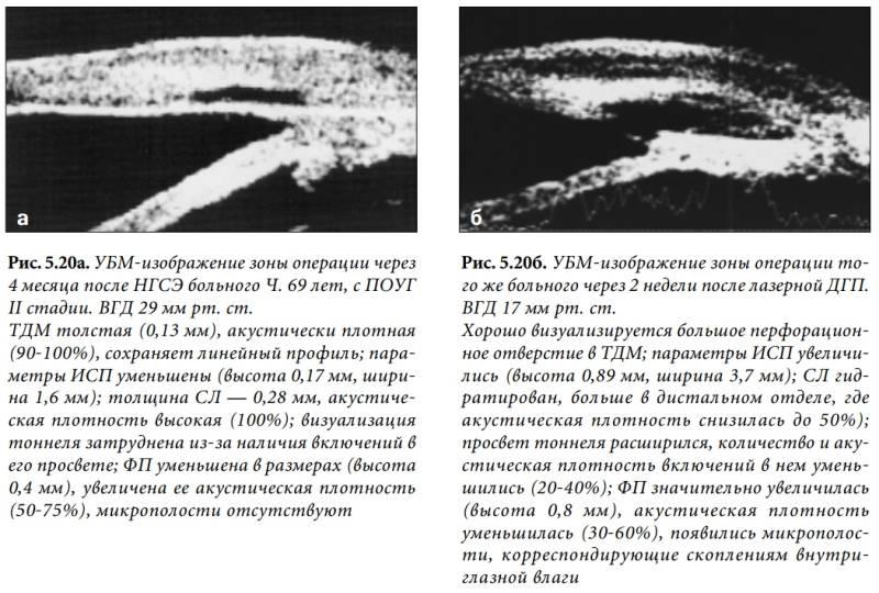 Лазерная десцеметогониопунктура - что это, как проходит, последствия, отзывы