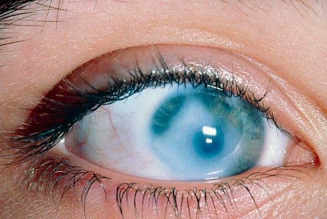 Почему появляется бельмо на глазу и как это исправить?
