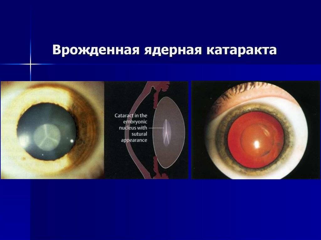 Катаракта: симптомы и схема лечения, профилактика катаракты глаза