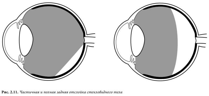 Задняя отслойка стекловидного тела причины лечение   ocularhelp