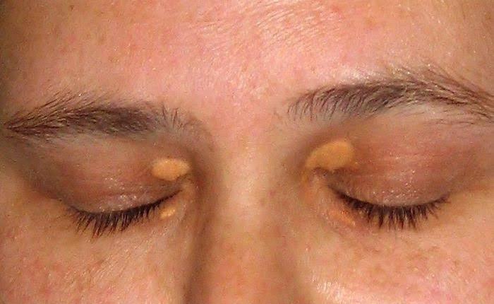 Жировики на веках глаз - как избавиться? ищите ответ здесь!