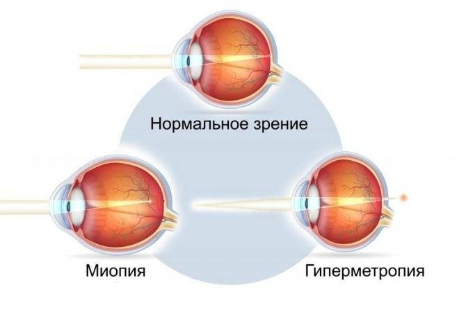 Плюсы и минусы линз для глаз контактных: вред и польза, за и против глазных изделий, вредно ли носить постоянно, каждый день