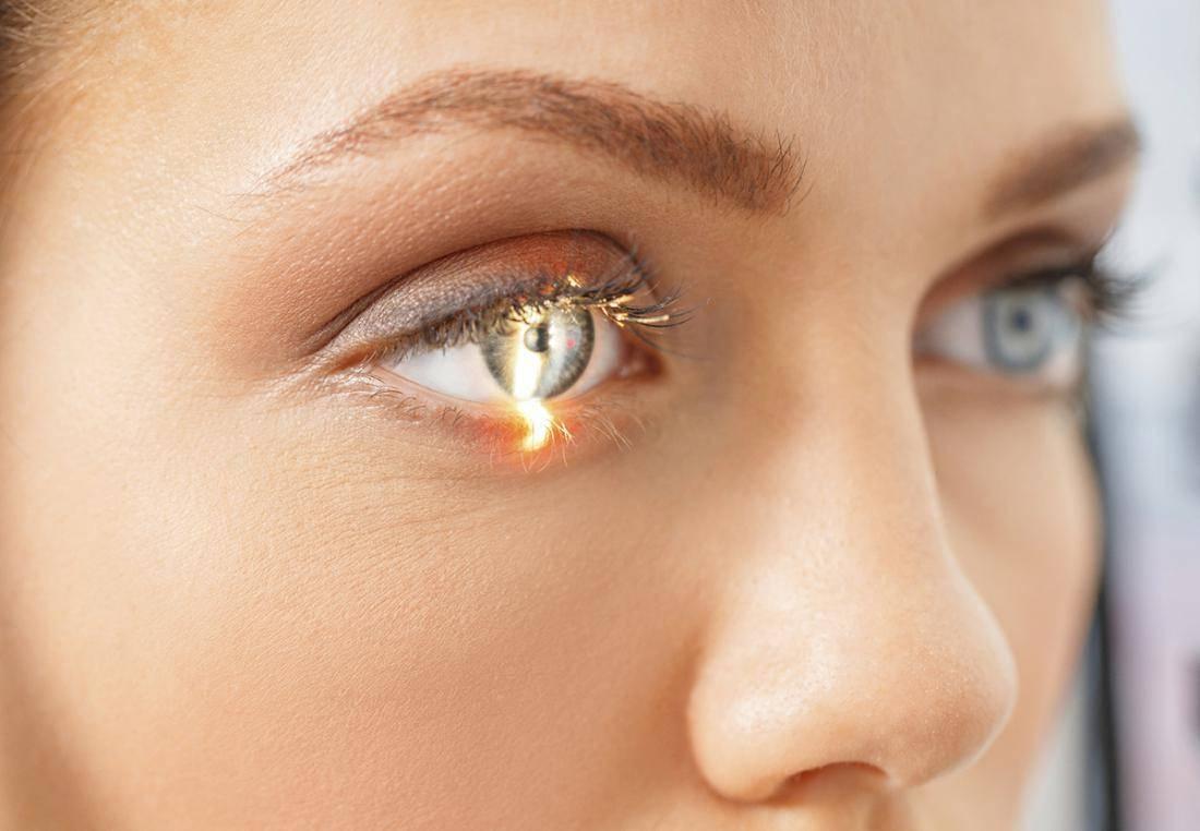Падает зрение после лазерной коррекции что делать - лечение глаз