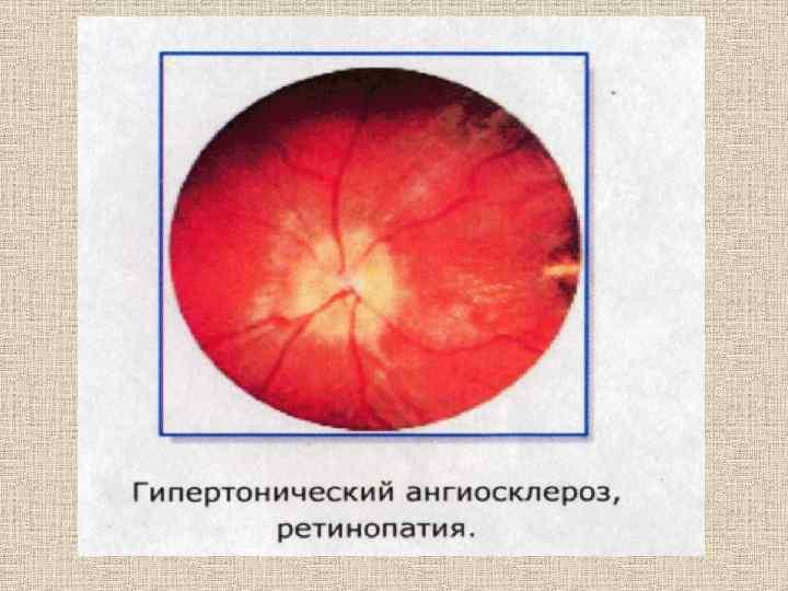 Причины возникновения, диагностика и лечение атеросклероза сетчатки глаза