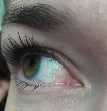 """Пленка на глазах: причины, симптомы, лечение - """"здоровое око"""""""