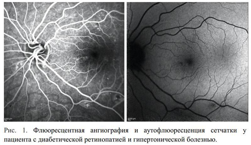 Флуоресценция глаз (фагд) - метод исследования глазного дна