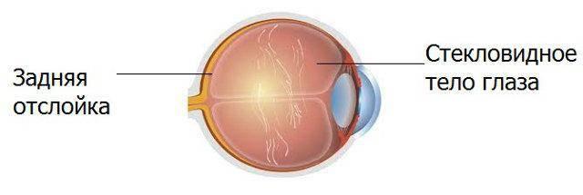 """Задняя отслойка стекловидного тела (зост) - """"здоровое око"""""""