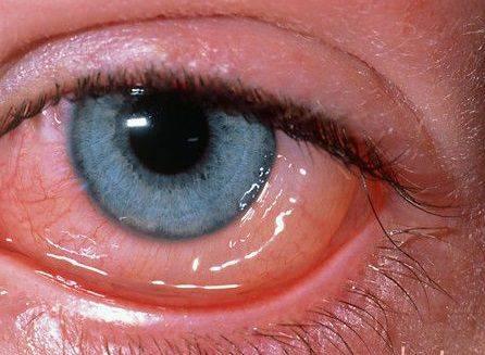 Гной в глазах после бани - причины, лечение