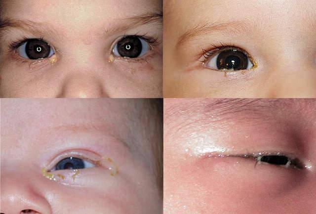 У новорожденного гноится глаз – что делать и чего нельяз делать
