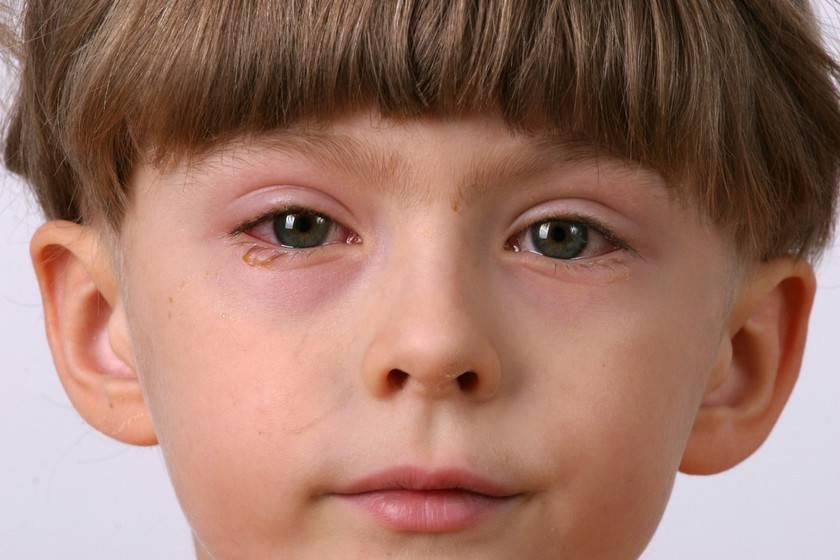 Блефарит у детей (29 фото): лечение чешуйчатого блефарита, чем лечить глаза новорожденных, советы доктора комаровского
