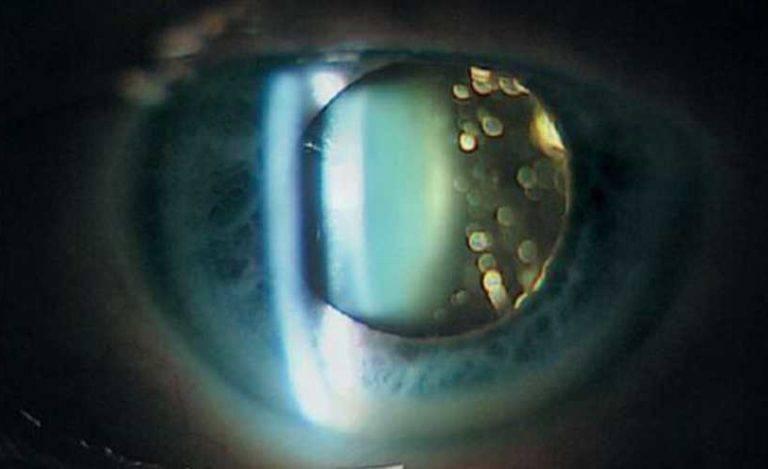 Деструкция и помутнение стекловидного тела - что это, лечение дст в медицине