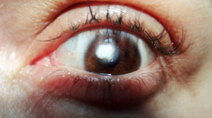 Бельмо: это что такое, лейкома роговицы на глазу у человека, фото, код по мкб-10, васкуляризированная разновидность