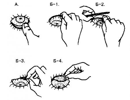 Как вывернуть глазное веко. техника выполнения