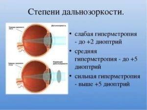 Методы терапевтического воздействия на миопию средней степени