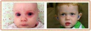 О чем говорят отеки и мешки под глазами у детей?