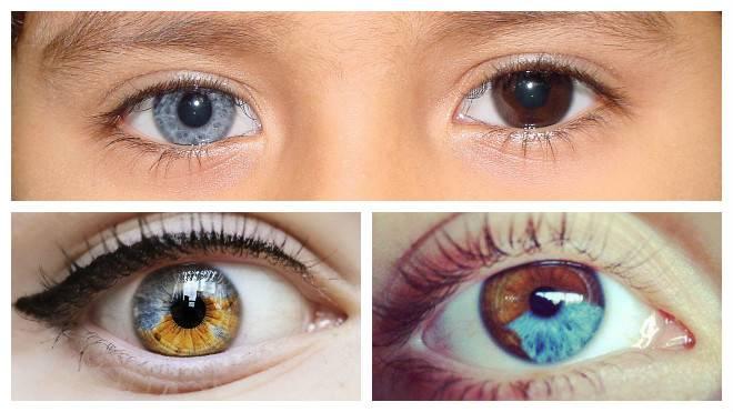 Что такое гетерохромия глаз
