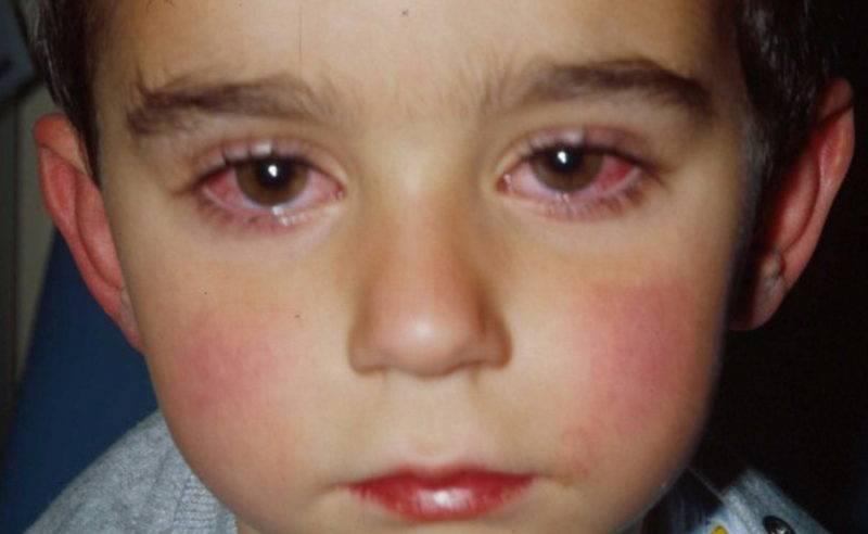 Маме в помощь: лечим насморк и красные глаза у ребенка правильно