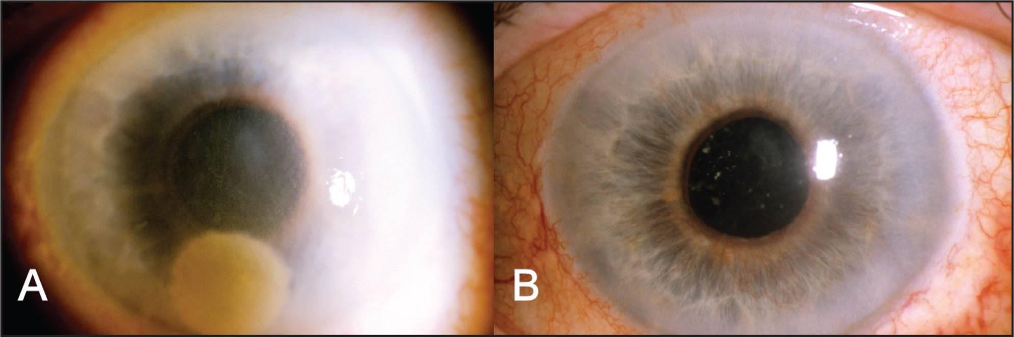 Кератопатия роговицы глаза: лечение, виды (буллезная, лентовидная, точечная)