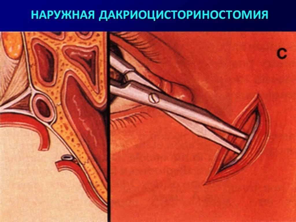 Дакриоцисториностомия
