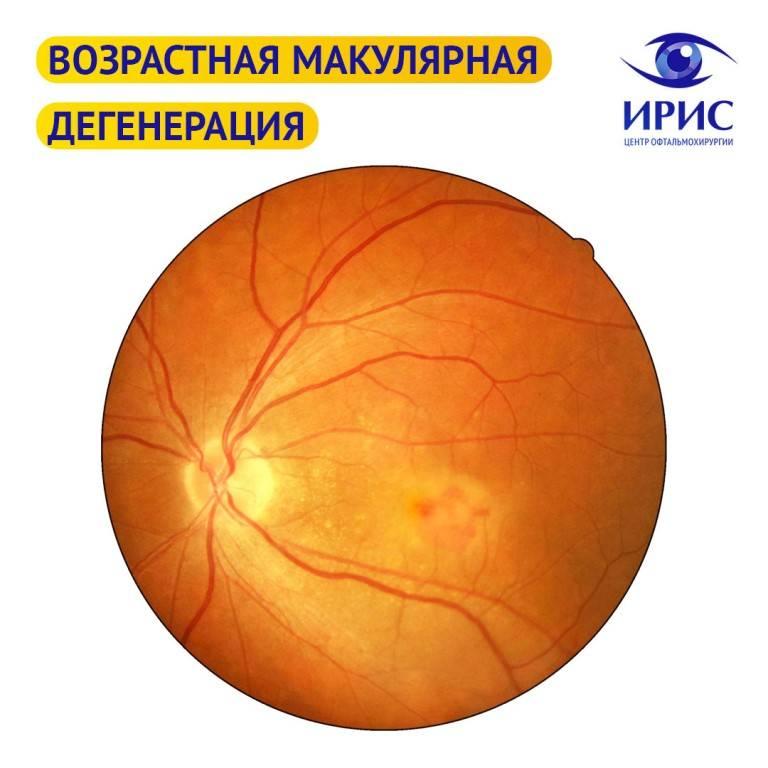Макулодистрофия глаза: симптомы и причины заболевания, лечение сухой и влажной макулодистрофии сетчатки глаза