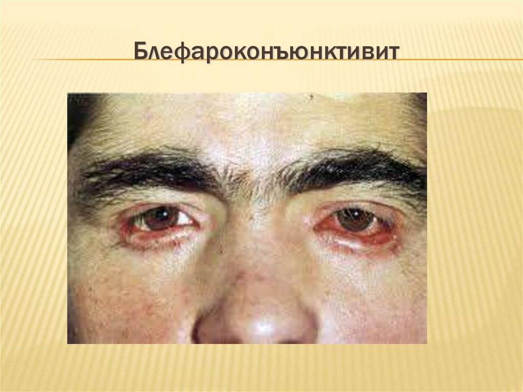 Почему возникает блефароконъюнктивит глаз и его лечение в домашних условиях?