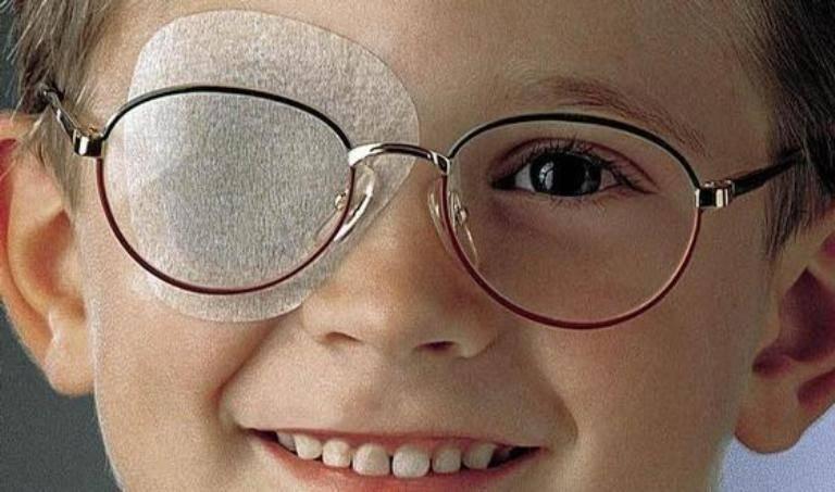 Окклюдер: выбор глазного пластыря для детей и взрослых