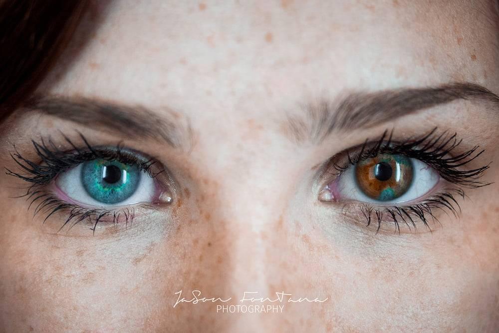 Гетерохромия: частичная гетерохромия у человека, причины появления, можно ли поменять цвет глаз
