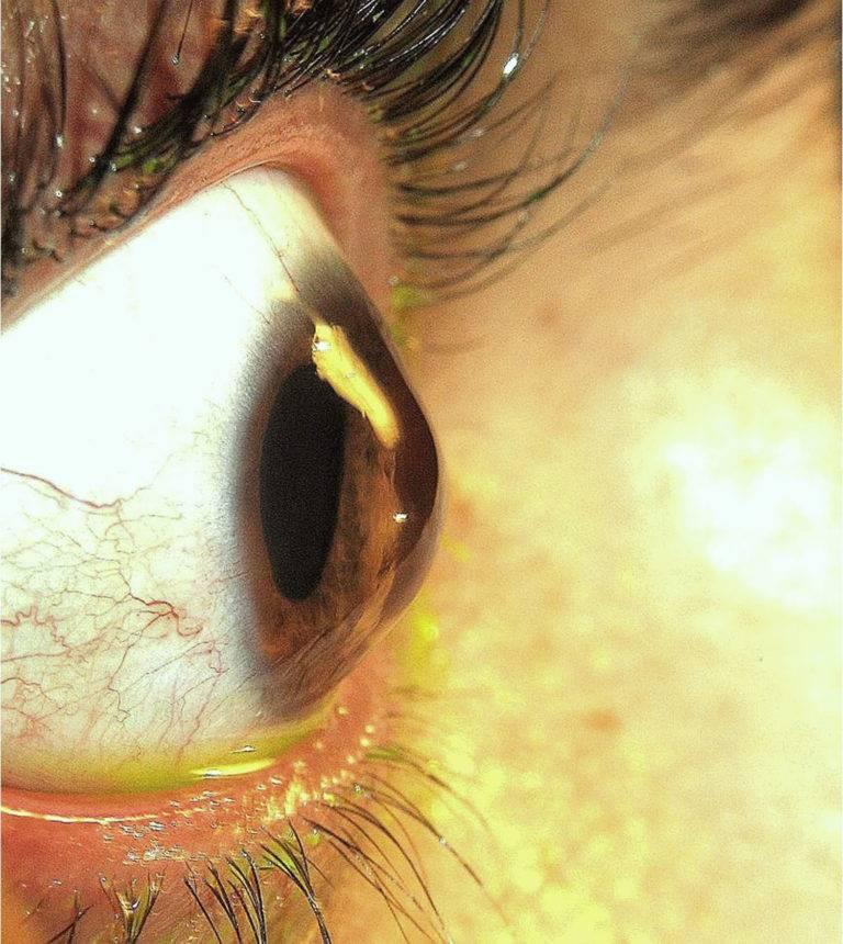 Кератоконус - симптомы, классификация, лечение